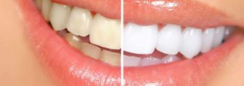 Teeth Whitening in South Africa