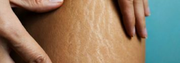 stretch marks removal south africa